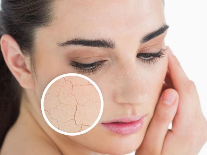 Cách dưỡng da vào mùa lạnh