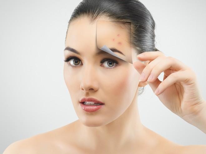Những điều quan trọng khi chăm dưỡng làn da dầu khi nổi mụn